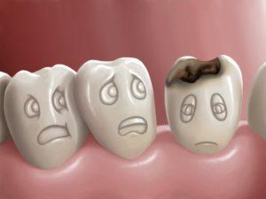 Amalgamas dentales, ¿conoces su toxicidad