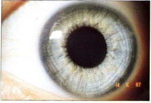 Iris constitución linfática