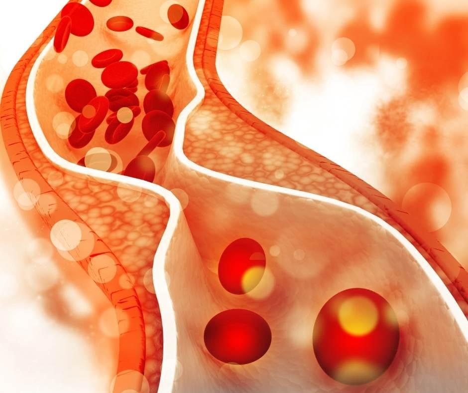 los anacardos mejoran el colesterol